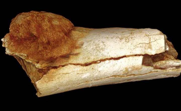 Il tumore più antico ha due milioni di anni