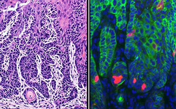Cellule staminali del cancro ottimizzate: migliorano l'efficacia