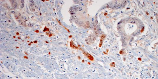 Mancanza di ossigeno e metastasi del cancro: c'è un legame