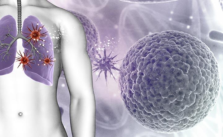 Tumore al polmone: una nuova scoperta per combattere la malattia