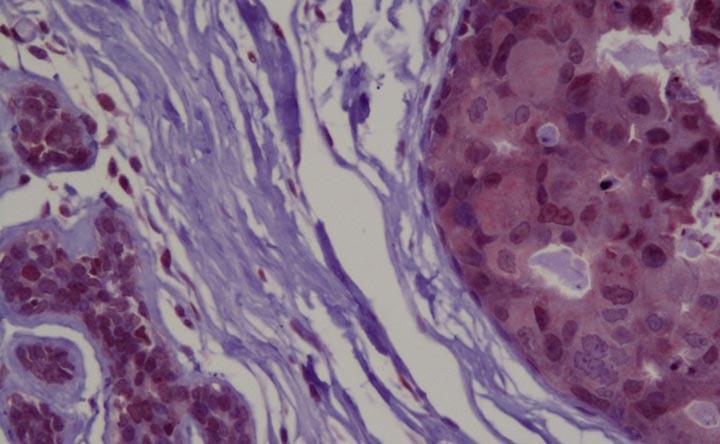 Cancro al seno: scoperta una proteina in grado di inibire la crescita delle cellule tumorali