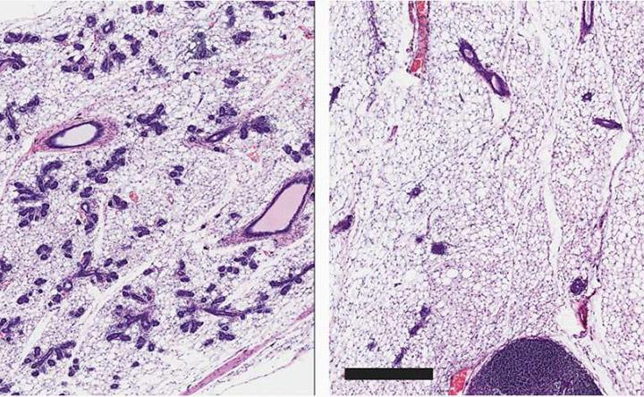 Da una proteina delle cellule staminali una possibile via per uccidere le cellule del tumore al seno