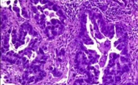 Test epigenetico per il cancro primario con sede sconosciuta