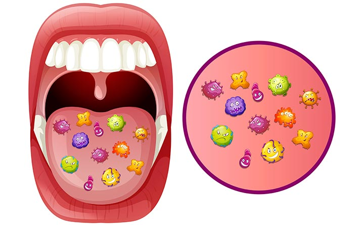 Come il microbioma orale può influenzare il rischio del cancro all'esofago