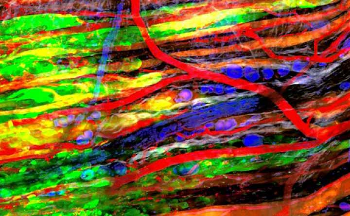 Un nuovo studio per capire come bloccare la diffusione delle metastasi nell'organismo, lo studio