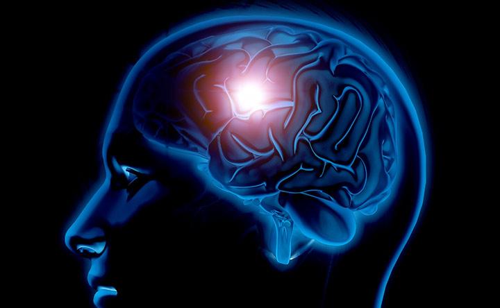 Il tumore cerebrale discrimina a seconda del sesso