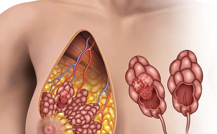 Come il cancro al seno sfugge al controllo del sistema immunitario