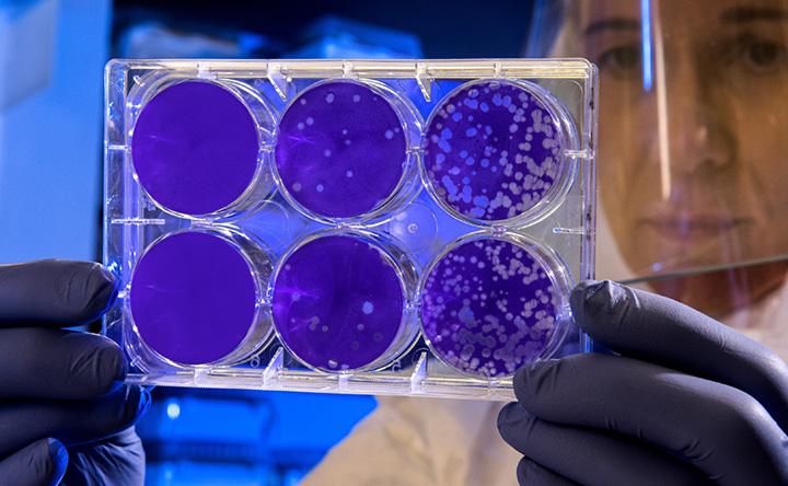 Il virus dell'influenza usato per curare il cancro
